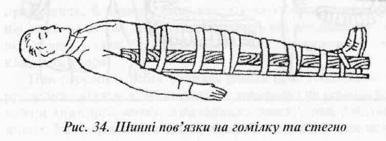 Перша допомога при ушкодженні мяких тканин, суглобів і кісток