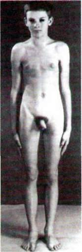 Синдром Клайнфельтера   Хромосомні хвороби, зумовлені порушенням кількості чи будови хромосом