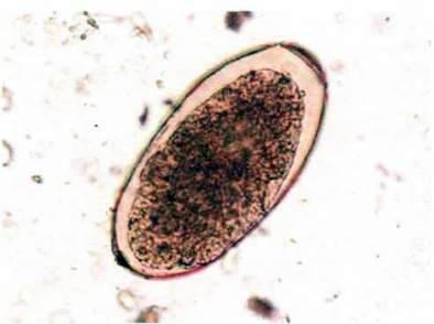 Сисун печінковий, або фасціола (Fasciola hepatica)   Тип Плоскі черви Plathelminthes