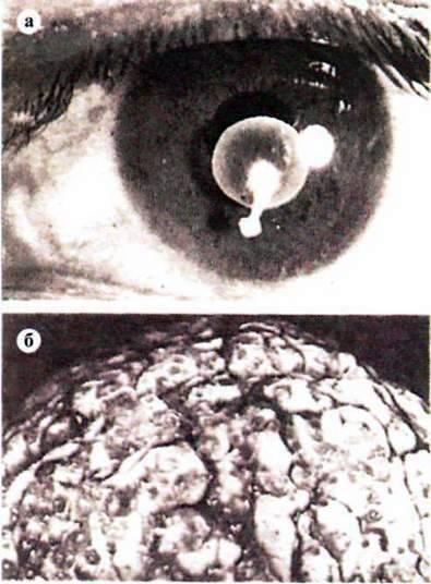 Ціпяк озброєний, або свинячий (Taenia solium)   Тип Плоскі черви Plathelminthes